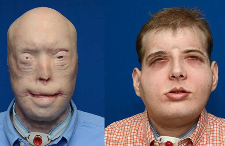Doctor hispano realiza el primer trasplante completo de cara en el mundo